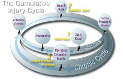 Active Release Cycle